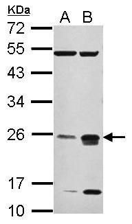 CHMP4C Antibody (PA5-32050) in Western Blot