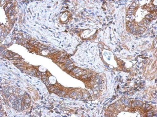 GCNT3 Antibody (PA5-32056) in Immunohistochemistry (Paraffin)