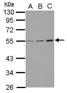 GCNT3 Antibody (PA5-32056) in Western Blot