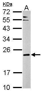 CPLX3 Antibody (PA5-32059) in Western Blot