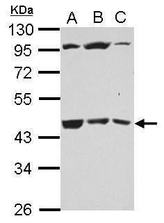 B3GALT4 Antibody (PA5-32072) in Western Blot