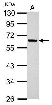 ANKRD53 Antibody (PA5-32076) in Western Blot