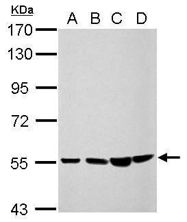 CCDC105 Antibody (PA5-32078) in Western Blot