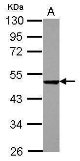 PHD1 Antibody (PA5-32081) in Western Blot