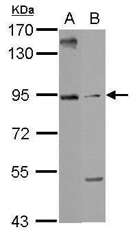 ARMC3 Antibody (PA5-32084)