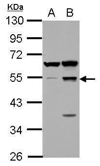 SCRN1 Antibody (PA5-32085) in Western Blot