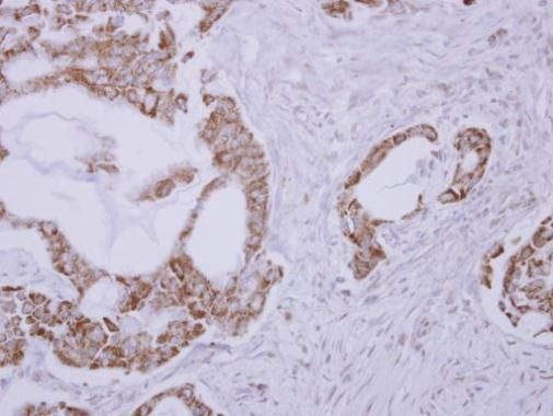 Clavesin Antibody (PA5-32088) in Immunohistochemistry (Paraffin)