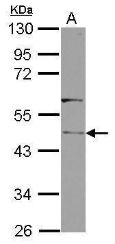 Clavesin Antibody (PA5-32088) in Western Blot