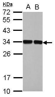 ENOPH1 Antibody (PA5-32096) in Western Blot