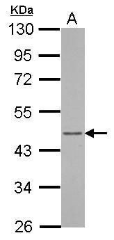 Arfaptin 1 Antibody (PA5-32107) in Western Blot