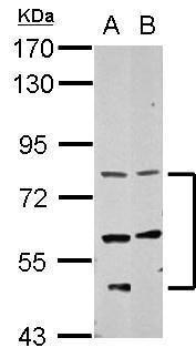 CCDC114 Antibody (PA5-32115) in Western Blot