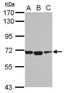 ACSM1 Antibody (PA5-32119) in Western Blot