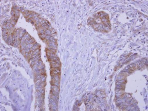 Slap Antibody (PA5-32121)