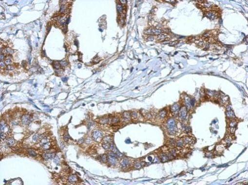 Fibulin 7 Antibody (PA5-32125) in Immunohistochemistry (Paraffin)