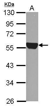 ALDH1A1 Antibody (PA5-32127) in Western Blot