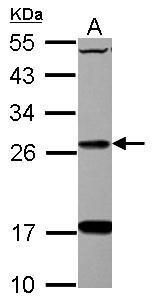 DHRS2 Antibody (PA5-32128) in Western Blot
