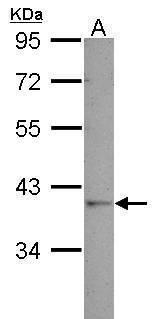 GALM Antibody (PA5-32134)