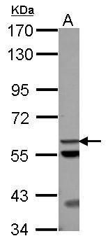 ACOT12 Antibody (PA5-32152) in Western Blot