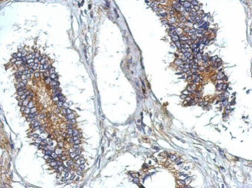 ATG13 Antibody (PA5-32158) in Immunohistochemistry (Paraffin)