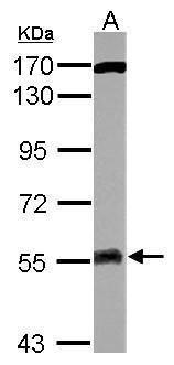 ATG13 Antibody (PA5-32158) in Western Blot