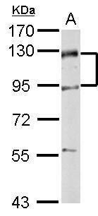 ZPK Antibody (PA5-32173) in Western Blot