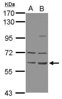ZNF350 Antibody (PA5-32177) in Western Blot