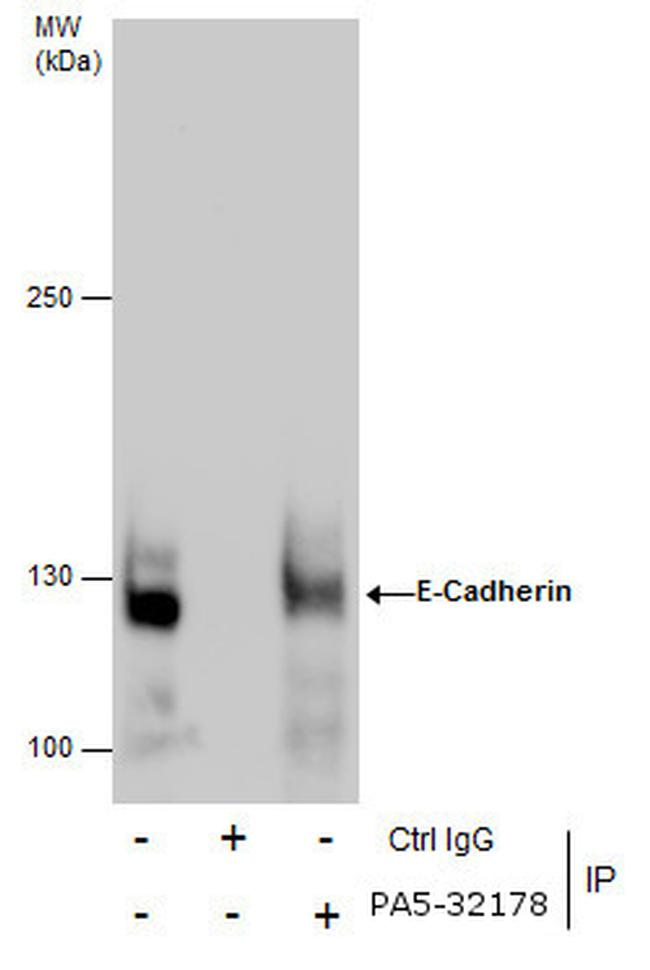 E-cadherin Antibody (PA5-32178) in Immunoprecipitation