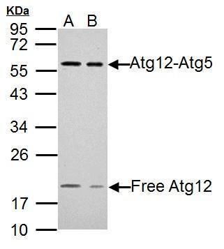 ATG12 Antibody (PA5-32180) in Western Blot