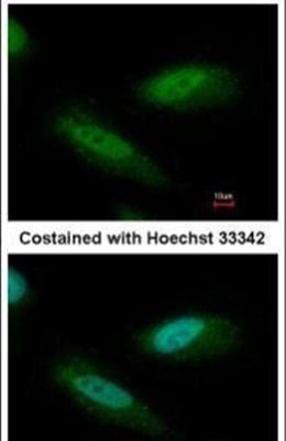 CHD4 Antibody (PA5-32181) in Immunofluorescence