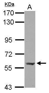 PLAG1 Antibody (PA5-32187) in Western Blot