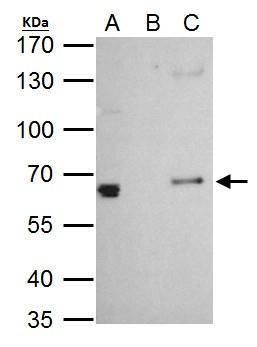PLAG1 Antibody (PA5-32188) in Immunoprecipitation