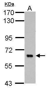 PLAG1 Antibody (PA5-32188) in Western Blot