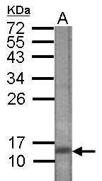 CTGF Antibody (PA5-32194) in Western Blot