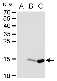 Dengue Virus Type 2 NS2B Antibody (PA5-32196) in Western Blot