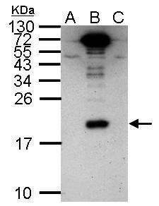 Dengue Virus Type 2 NS4A Antibody (PA5-32197)
