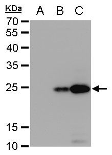 Dengue Virus Type 2 NS4B Antibody (PA5-32198) in Western Blot