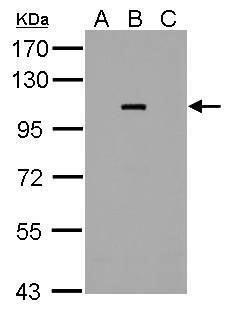 Dengue Virus Type 2 NS5 Antibody (PA5-32200) in Western Blot