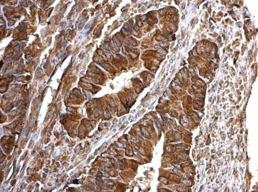 Bcl-xS Antibody (PA5-32203) in Immunohistochemistry (Paraffin)