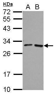 FOLR4 Antibody (PA5-32205) in Western Blot