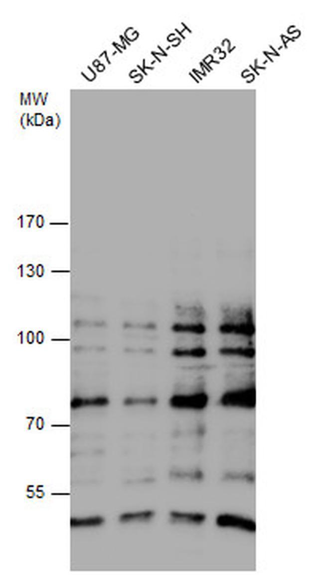 GLI1 Antibody (PA5-32206) in Western Blot