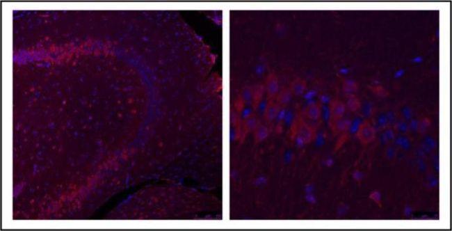 GLI1 Antibody (PA5-32206)