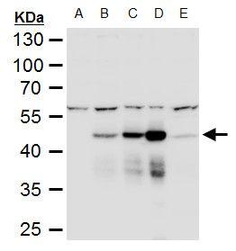 Dengue Virus Type 2 NS1 Antibody (PA5-32207) in Western Blot
