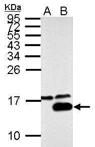 Galectin 7 Antibody (PA5-32214) in Western Blot