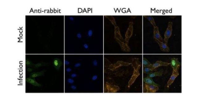 Influenza A PA Antibody (PA5-32223) in Immunofluorescence
