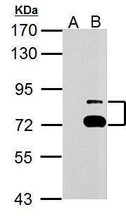 TTC39B Antibody (PA5-32227) in Western Blot