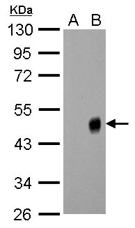 Influenza A H1N1 NA Antibody (PA5-32238) in Western Blot