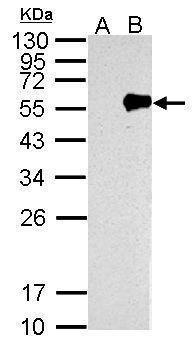Influenza A NP Antibody (PA5-32242) in Western Blot