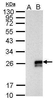 ATP6V0D1 Antibody (PA5-32243) in Western Blot