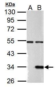 Galectin 9 Antibody (PA5-32252) in Western Blot