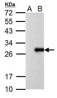 Influenza A M1 Antibody (PA5-32253)